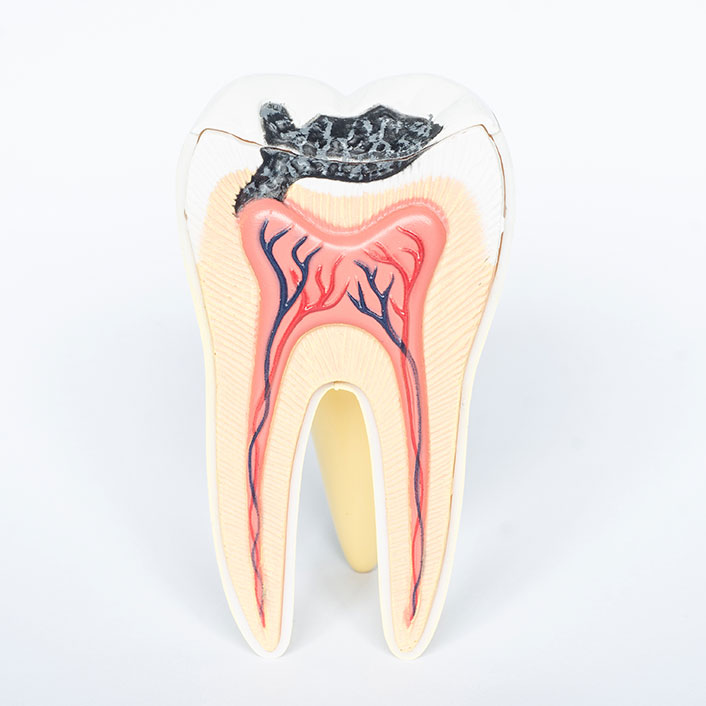 toothe with cavity diagram