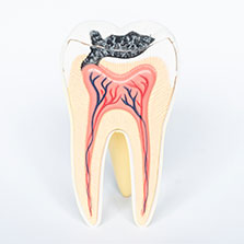 tooth with cavity diagram