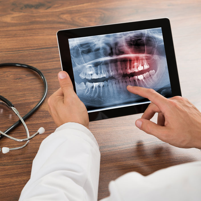 dentist holding xray on ipad