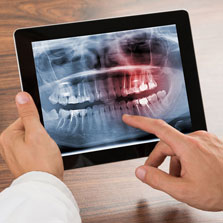 dentist holding xray of mouth on ipad