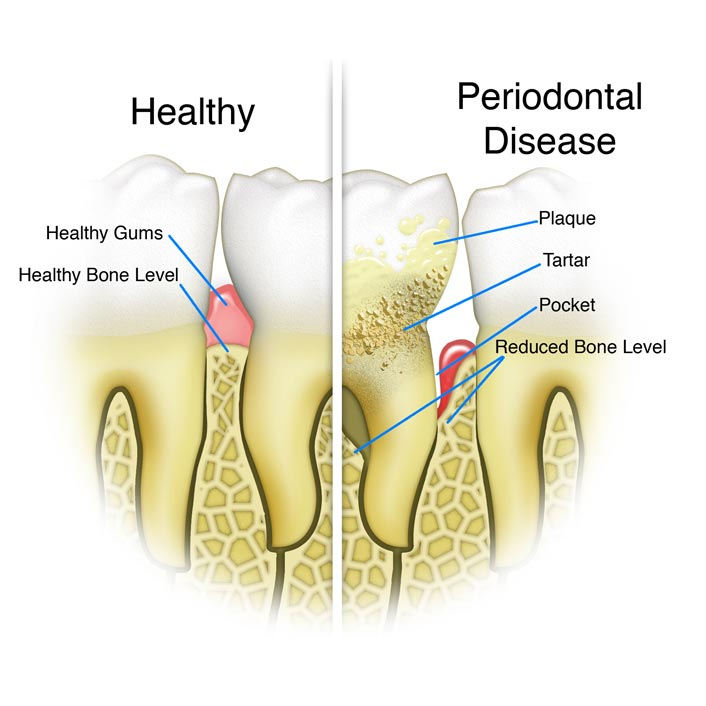 half and half diagram of healthy mouth and periodontal disease