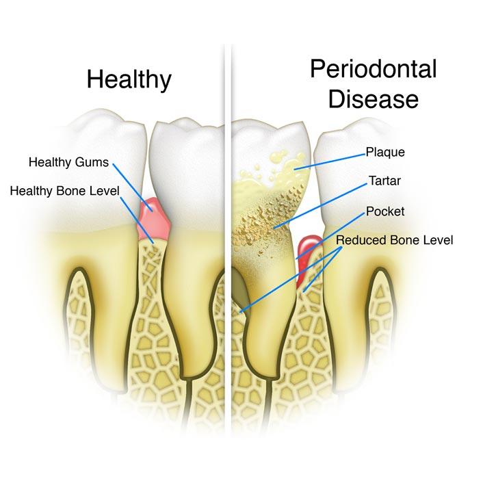 comparison diagram of healthy mouth and periodontal disease